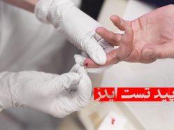رپید تست ایدز چیست و چگونه انجام میشود؟