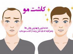 نکات مهمی که قبل و بعد از کاشت مو باید بدانید